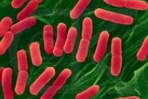 出血性大腸桿菌O:157(E.coli O157:H7)