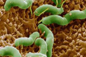 幽門螺旋桿菌(Helicobacter Pylor)多克隆抗體